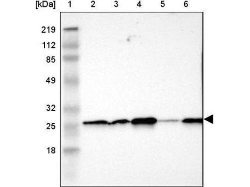 Western Blotting (WB) image for anti-Synaptosomal-Associated Protein, 23kDa (SNAP23) antibody (ABIN4354884)