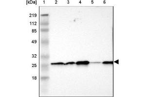 Western Blotting (WB) image for anti-Synaptosomal-Associated Protein, 23kDa (SNAP23) antibody (ABIN4354884)