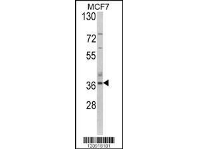 Western Blotting (WB) image for anti-ASPA antibody (Aspartoacylase) (AA 82-110) (ABIN390843)