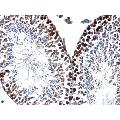 anti-PCNA anticorps (Proliferating Cell Nuclear Antigen) (Center)