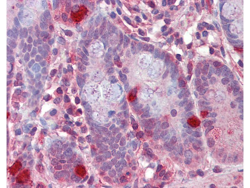 Immunohistochemistry (IHC) image for anti-Regulator of G-Protein Signaling 1 (RGS1) (AA 198-209) antibody (ABIN462280)