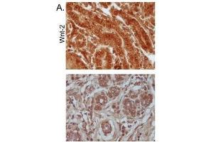 Immunohistochemistry (Paraffin-embedded Sections) (IHC (p)) image for anti-WNT2 抗体 (Wingless-Type MMTV Integration Site Family Member 2) (AA 240-290) (ABIN762896)