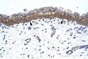Image no. 1 for anti-Zinc Finger Protein 385A (ZNF385A) (C-Term) antibody (ABIN2777455)