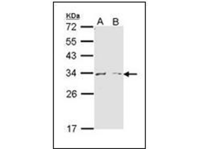 Western Blotting (WB) image for anti-Arginase, Liver (ARG1) (AA 1-145) antibody (ABIN615799)