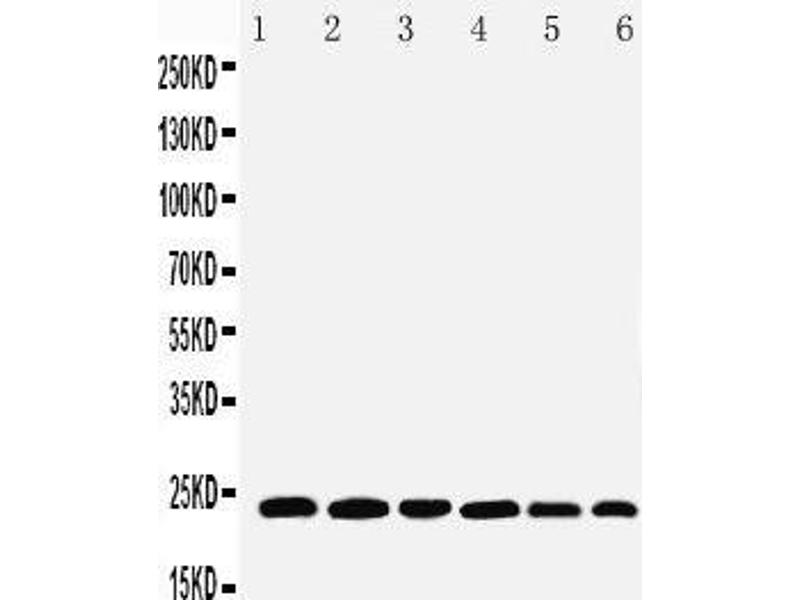 Western Blotting (WB) image for anti-Synaptosomal-Associated Protein, 23kDa (SNAP23) (AA 192-211), (C-Term) antibody (ABIN3044163)