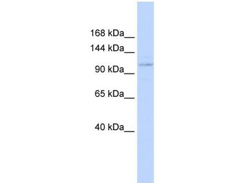 Western Blotting (WB) image for anti-Zinc Finger Protein 387 (Middle Region) antibody (ABIN404891)