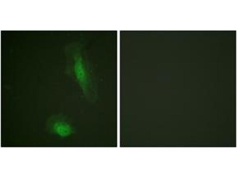 Immunofluorescence (IF) image for anti-V-Akt Murine Thymoma Viral Oncogene Homolog 1 (AKT1) (AA 95-144) antibody (ABIN1532436)