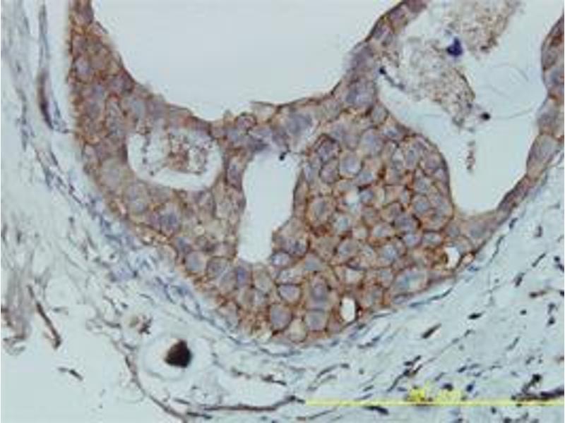 Immunohistochemistry (IHC) image for anti-F11R antibody (F11 Receptor) (AA 1-300) (ABIN395554)