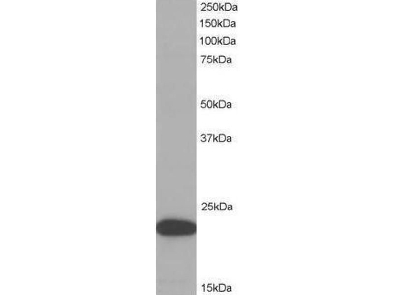 image for anti-PYCARD antibody (PYD and CARD Domain Containing) (C-Term) (ABIN782893)