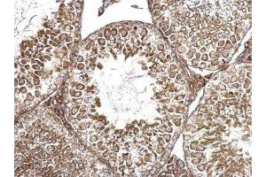 Immunohistochemistry (Paraffin-embedded Sections) (IHC (p)) image for anti-Anti-Mullerian Hormone (AMH) (C-Term) antibody (ABIN4334571)