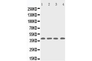 Western Blotting (WB) image for anti-RRM2B antibody (Ribonucleotide Reductase M2 B (TP53 Inducible)) (AA 318-332) (ABIN3042928)