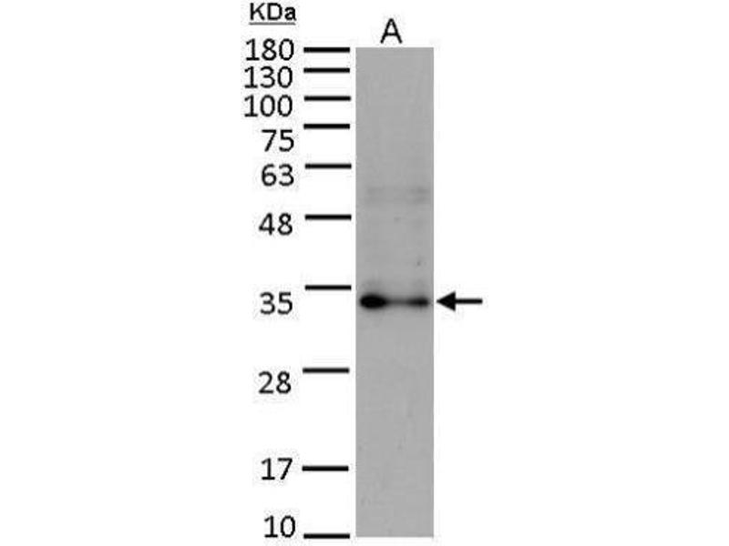 Western Blotting (WB) image for anti-Fibroblast Growth Factor 10 (FGF10) (Center) antibody (ABIN2854900)