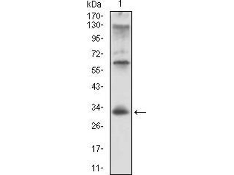 Image no. 4 for anti-HLA-DR-gamma (CD74) (AA 1-106) antibody (ABIN1724870)
