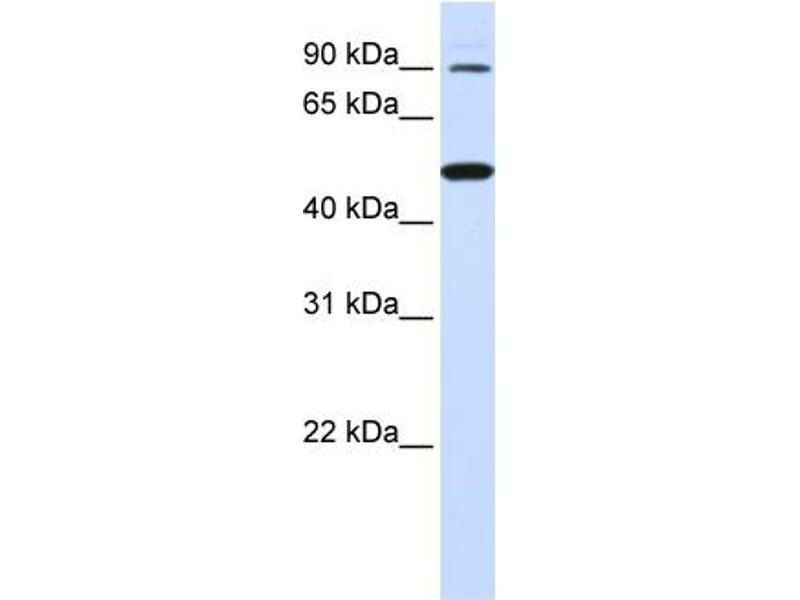 Western Blotting (WB) image for anti-Rhomboid 5 Homolog 1 (Drosophila) (RHBDF1) (N-Term) antibody (ABIN406075)