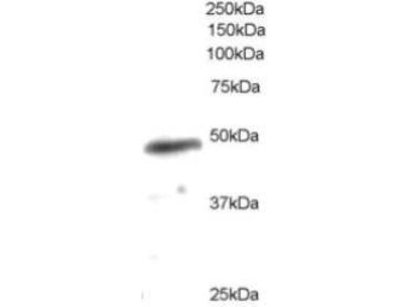 Western Blotting (WB) image for anti-Neutrophil Cytosol Factor 1 (NCF1) (C-Term) antibody (ABIN256632)