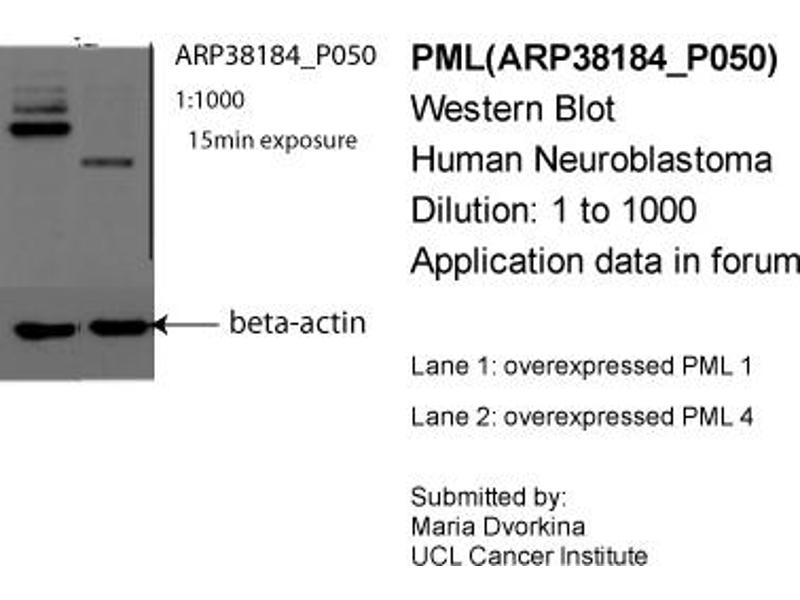 Western Blotting (WB) image for anti-PML antibody (Promyelocytic Leukemia) (N-Term) (ABIN2780446)