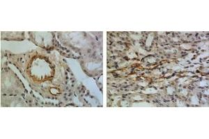 Immunohistochemistry (Paraffin-embedded Sections) (IHC (p)) image for anti-IGFBP5 antibody (Insulin-Like Growth Factor Binding Protein 5) (ABIN439428)