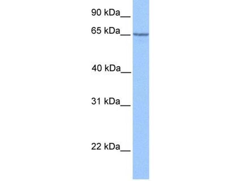 Western Blotting (WB) image for anti-Promyelocytic Leukemia (PML) (C-Term) antibody (ABIN2777721)
