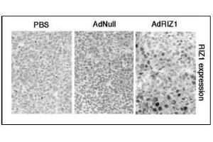 Image no. 2 for anti-PR Domain Containing 2, with ZNF Domain (PRDM2) (AA 245-573) antibody (ABIN356710)
