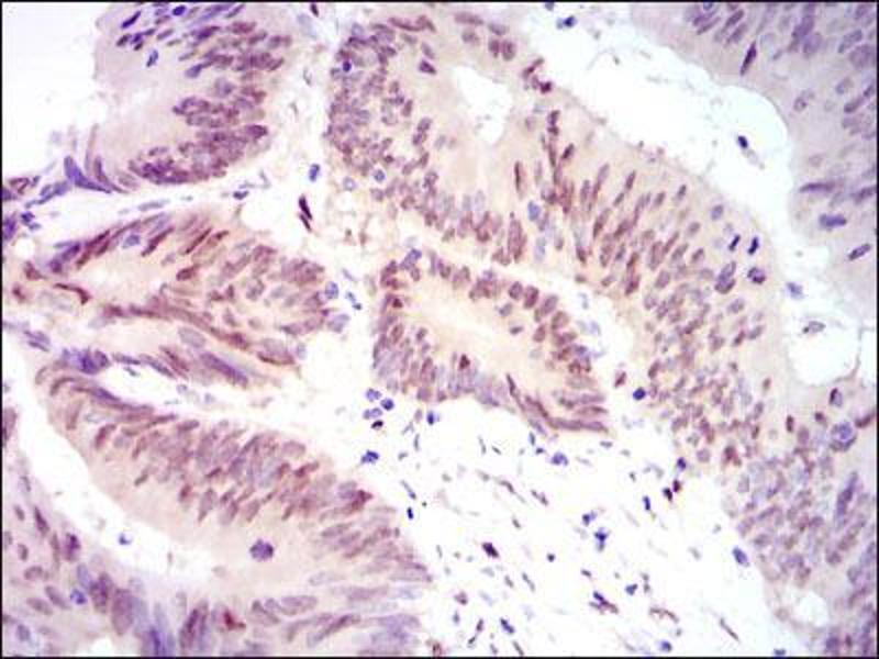 Immunohistochemistry (IHC) image for anti-Yes-Associated Protein 1 (YAP1) antibody (ABIN969574)