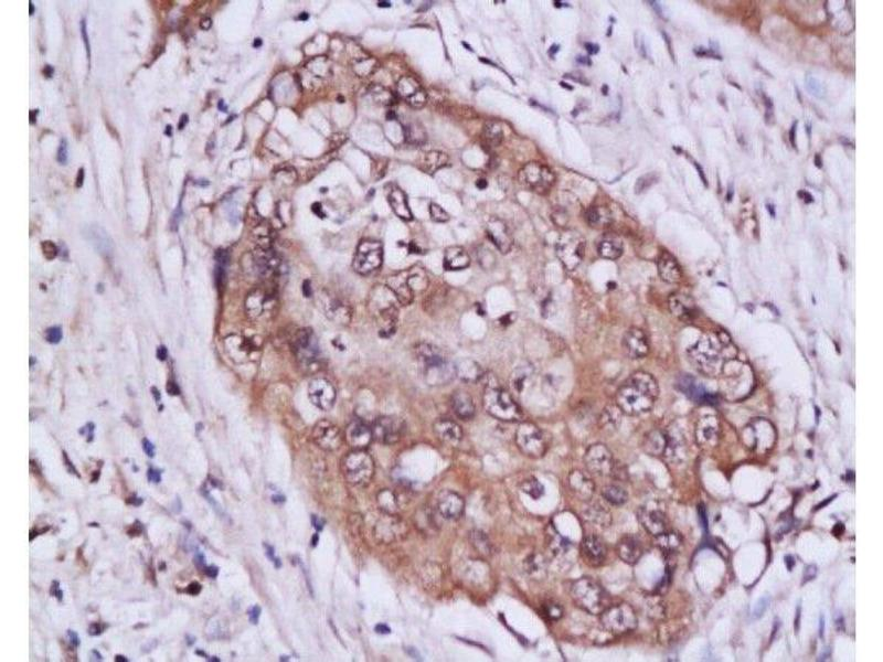 Immunohistochemistry (Paraffin-embedded Sections) (IHC (p)) image for anti-Signal Transducer and Activator of Transcription 3 (Acute-Phase Response Factor) (STAT3) (AA 260-310) antibody (ABIN738261)