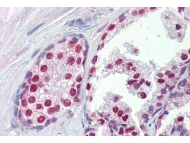 Immunohistochemistry (Paraffin-embedded Sections) (IHC (p)) image for anti-Forkhead Box A1 (FOXA1) (AA 429-439) antibody (ABIN462282)