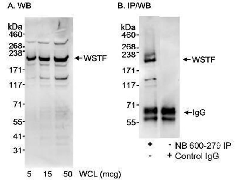 Western Blotting (WB) image for anti-Bromodomain Adjacent To Zinc Finger Domain, 1B (BAZ1B) (AA 1-50) antibody (ABIN153218)