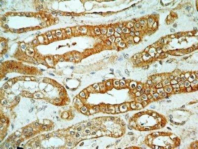 Immunohistochemistry (Paraffin-embedded Sections) (IHC (p)) image for anti-FOXO1 antibody (Forkhead Box O1) (ABIN4312371)