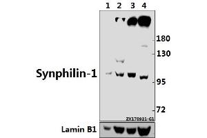 Image no. 1 for anti-Synuclein, alpha Interacting Protein (SNCAIP) (AA 815-867) antibody (ABIN6712979)