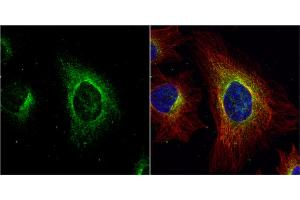 Immunofluorescence (IF) image for anti-Argininosuccinate Lyase (ASL) (Center) antibody (ABIN2856924)