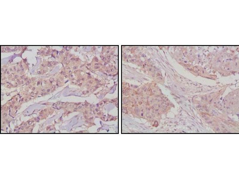 Immunohistochemistry (IHC) image for anti-Nerve Growth Factor Receptor (NGFR) antibody (ABIN2869468)
