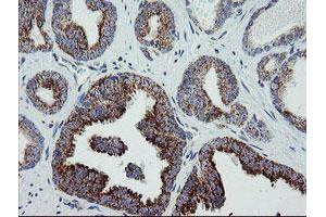 Image no. 12 for anti-Mitochondrial Ribosomal Protein S27 (MRPS27) (AA 151-414) antibody (ABIN1490963)
