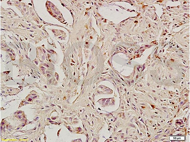 Immunohistochemistry (IHC) image for anti-Caspase 8 antibody (Caspase 8, Apoptosis-Related Cysteine Peptidase) (AA 430-482) (ABIN724205)
