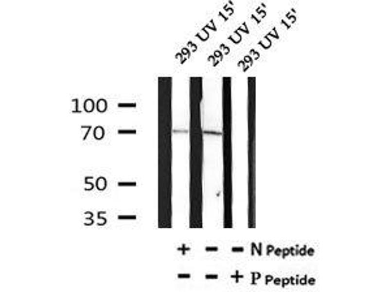 Image no. 1 for anti-ROP Interactive Partner 2 (RIP2) (pTyr176) antibody (ABIN6269655)