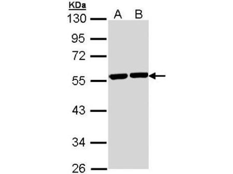 Western Blotting (WB) image for anti-TUBA8 Antikörper (Tubulin, alpha 8) (Center) (ABIN442865)