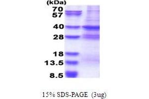 Image no. 1 for Mediator Complex Subunit 27 (MED27) (AA 1-311) protein (His tag) (ABIN5853665)