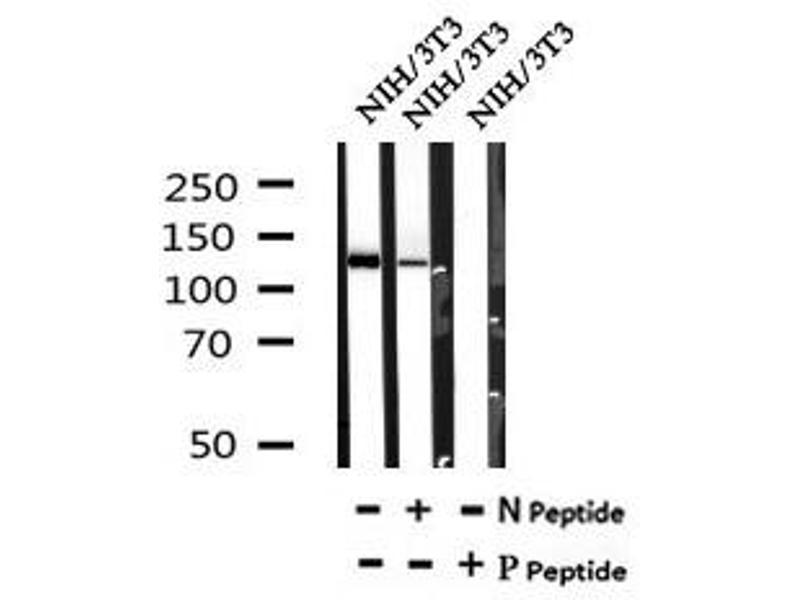 Image no. 2 for anti-TBC1 Domain Family, Member 4 (TBC1D4) (pSer570) antibody (ABIN6269679)