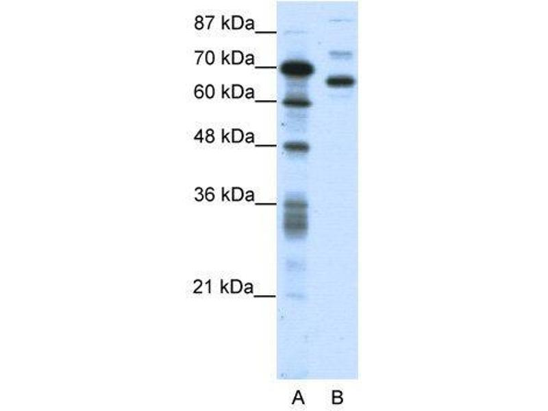 Western Blotting (WB) image for anti-CCCTC-Binding Factor (Zinc Finger Protein)-Like (CTCFL) (N-Term) antibody (ABIN183293)