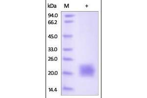 Image no. 2 for Cytotoxic T-Lymphocyte-Associated Protein 4 (CTLA4) (AA 37-160) (Active) protein (His tag) (ABIN2180926)