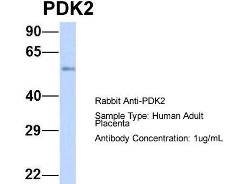 Western Blotting (WB) image for anti-3-phosphoinositide Dependent Protein Kinase-1 (PDPK1) (Middle Region) antibody (ABIN2777432)