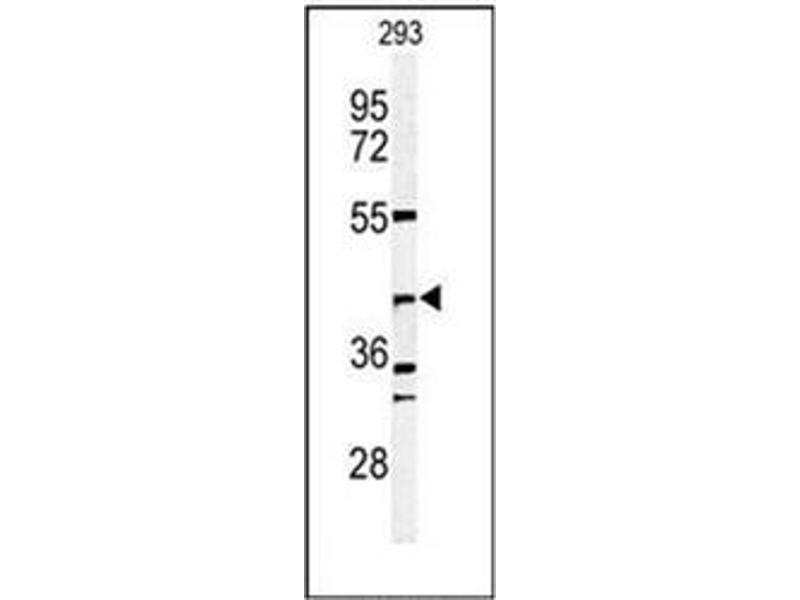 Western Blotting (WB) image for anti-DFFB antibody (DNA Fragmentation Factor, 40kDa, beta Polypeptide (Caspase-Activated DNase)) (AA 1-30) (ABIN951896)
