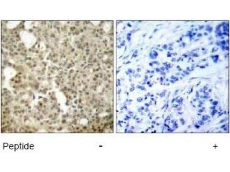 Immunohistochemistry (IHC) image for anti-Protein Kinase C, delta (PKCd) antibody (ABIN4345828)