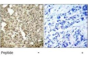 Immunohistochemistry (IHC) image for anti-Protein Kinase C, delta (PKCd) antibody (ABIN4345828)