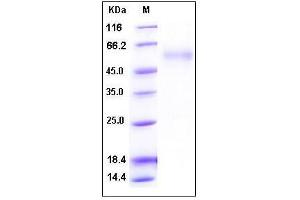 Image no. 1 for WNT1 Inducible Signaling Pathway Protein 1 (WISP1) (AA 1-367) (Active) protein (His tag) (ABIN2002857)