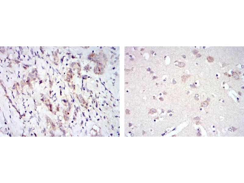 Immunohistochemistry (IHC) image for anti-FYN antibody (FYN Oncogene Related To SRC, FGR, YES) (ABIN1107284)
