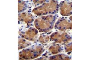 Image no. 1 for anti-Leucine-Rich Repeat and WD Repeat-Containing Protein 1 (LRWD1) (AA 4-33), (N-Term) antibody (ABIN953241)