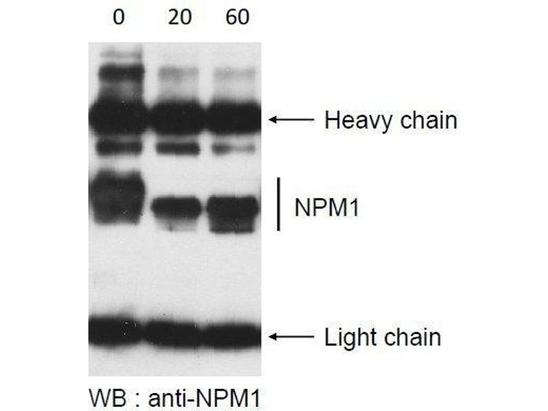 Western Blotting (WB) image for Lambda Protein Phosphatase (ABIN2451908)