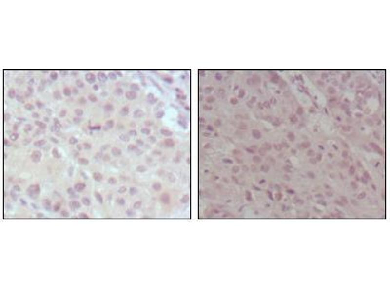 Image no. 1 for anti-Myeloid/lymphoid Or Mixed-Lineage Leukemia (Trithorax Homolog, Drosophila) (MLL) (AA 3751-3968) antibody (ABIN969286)