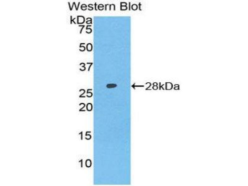 Western Blotting (WB) image for anti-Axin 1 (AXIN1) (AA 653-862) antibody (ABIN1858102)