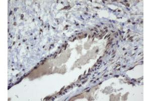 Image no. 2 for anti-Zinc Finger and SCAN Domain Containing 4 (ZSCAN4) (AA 164-433) antibody (ABIN1490994)